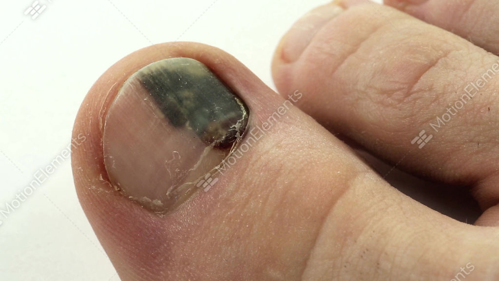 subungual hematoma bruise under the nail of big toe stock video rh motionelements com Bruise Yellow and Brown Brown Bruise Foot
