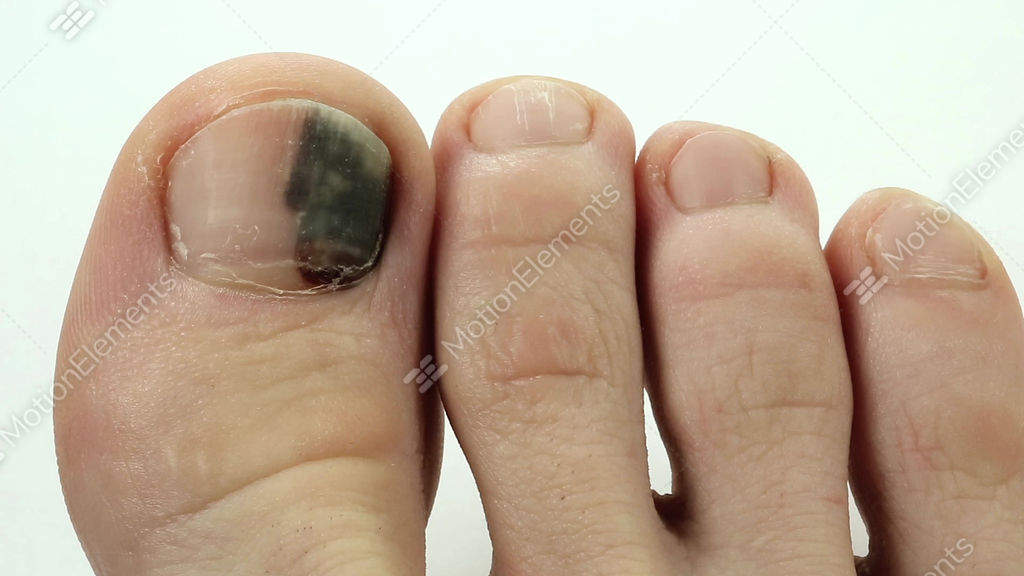 bruise under the nail of big toe stock video footage 9176739 rh motionelements com Bruise Yellow and Brown Light Brown Bruise