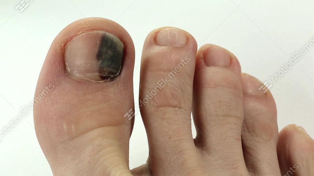 Subungual Hematoma. Bruise Under The Nail Of Big Toe Stock video ...