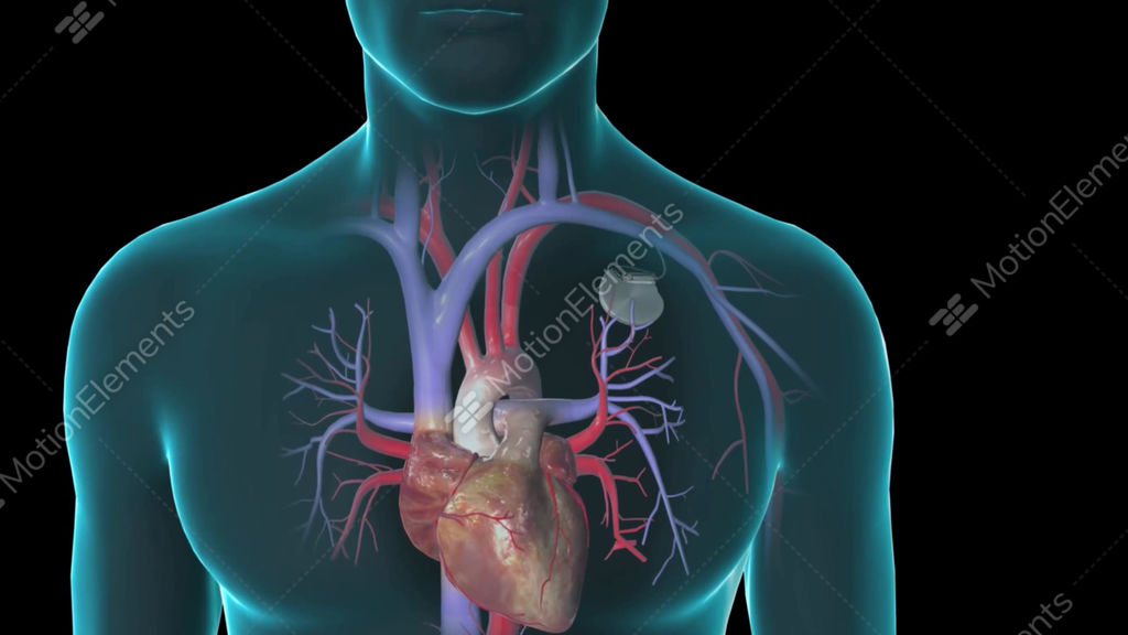 Realistic Human Heart Beating In Chest Via Contraction Of Atria And